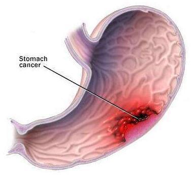 为何胃部肿瘤一检查就是晚期