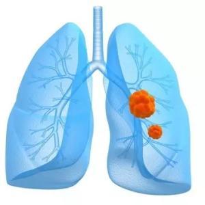 肺癌中期有哪些表现症状