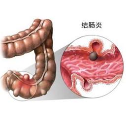 慢性结肠炎会病变为结肠癌吗