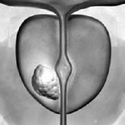 前列腺癌有哪些类型