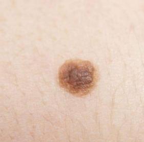 不同类型皮肤癌的症状表现