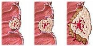 结肠癌肝转移该如何进行检查