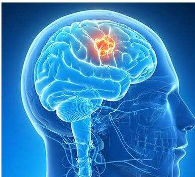 脑肿瘤患者应该注意哪些事项