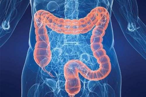 直肠癌怎样进行护理呢