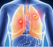 会导致患肺癌机率增加的因素
