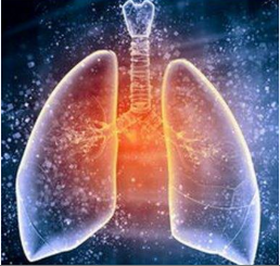 导致肺癌患者咳嗽的原因
