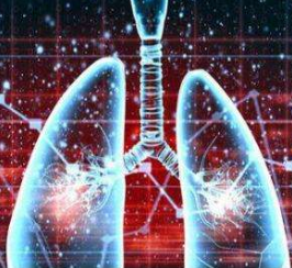 为什么肺癌患者会出现咳血