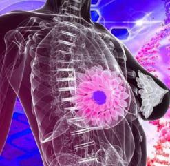 乳腺癌晚期哪个部位会疼痛?