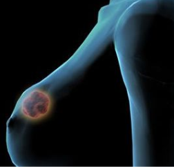 男性患上乳腺癌的原因是什么