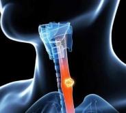 志苓胶囊治疗晚期癌症的效果