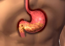 胃癌患者放疗期间的饮食