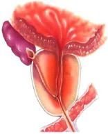 哪些男性更易患前列腺癌