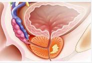提高前列腺癌治愈率的方法