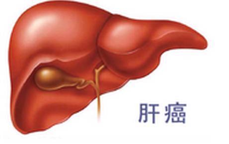 抽血和B超能检查肝癌?