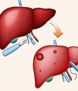 肝脏疾病不积极治疗