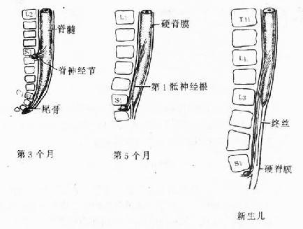 胎儿脊髓圆锥正常位置