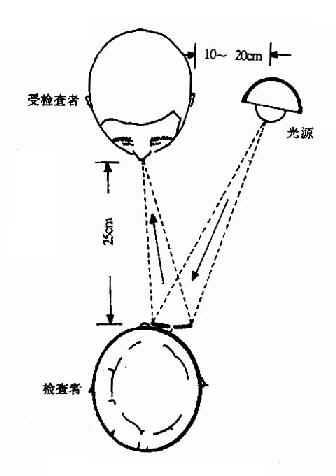 耳科医生的额镜原理_耳科医生的额镜图片