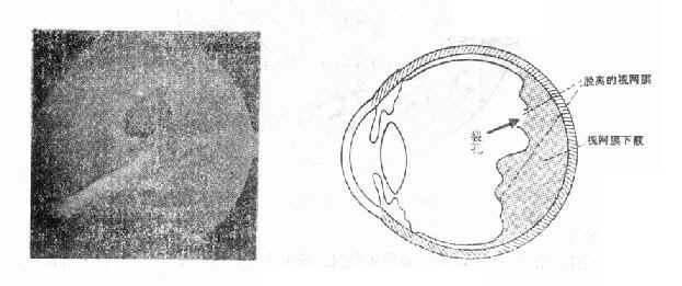 第五节 视网膜脱离