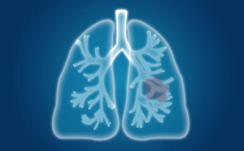 肺癌脑转移饮食方面怎么护理?肺癌脑转移患者心理怎么护理?