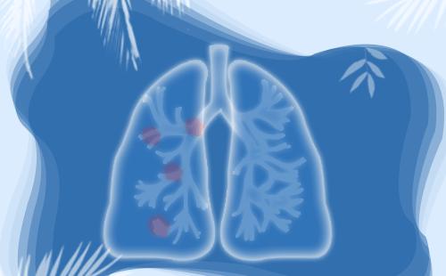 肺癌患者手术方式如何选择?