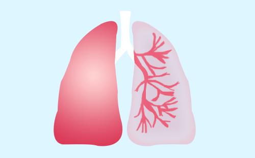 装修材料会引起肺癌吗?爱生气容易得肺癌吗?