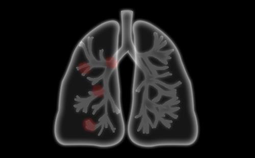 在发病原因上肺结核与肺癌有什么区别?