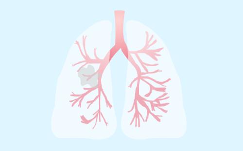 肺癌咳血说明很严重了吗?咳血表示肺癌已经晚期了吗?