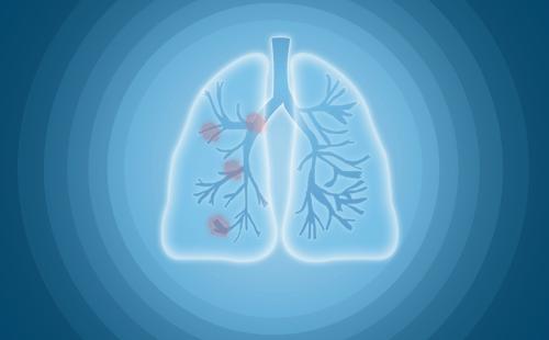 肺癌如何进行分期?肺癌晚期有哪些症状?