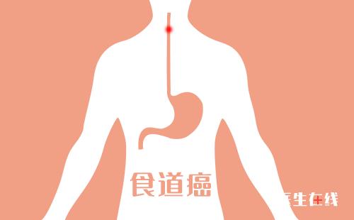 食道癌治疗方法之手术治疗