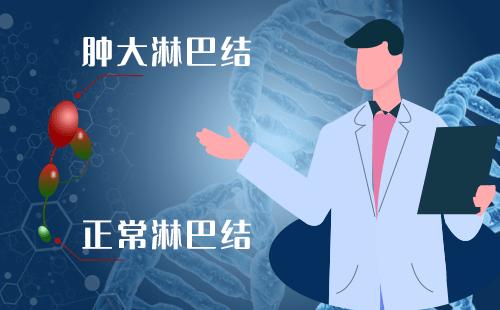确诊淋巴瘤后需要做哪些检查?