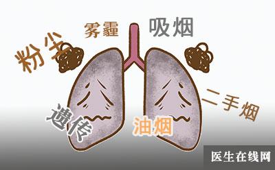 引起肺癌的原因