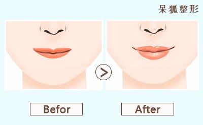 注射透明质酸丰唇的价格?注射透明质酸丰唇贵不贵?