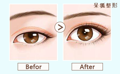 双眼皮埋线后要注意些什么?双眼皮埋线恢复期长吗?