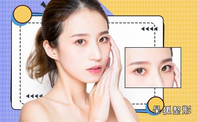双眼皮整形手术要花多少钱?双眼皮形状要做得好要避免踩哪些雷?
