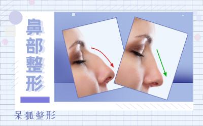 注射法隆鼻多少钱?哪些人适合注射法隆鼻?