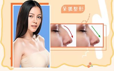 做隆鼻子手术需要多少钱?隆鼻整形效果可以维持多久?