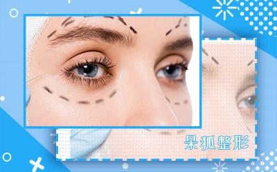 眼部整形手术多久恢复?眼部整形手术多少钱?