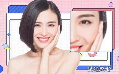 上海隆鼻修复多少钱?隆鼻修复的价格贵吗?