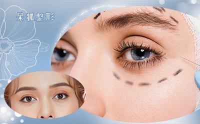 双眼皮埋线要注意什么?埋线双眼皮手术存在什么优势?