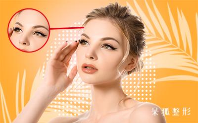 割双眼皮的价格是多少钱?割了一次双眼皮还可以割第二次吗?