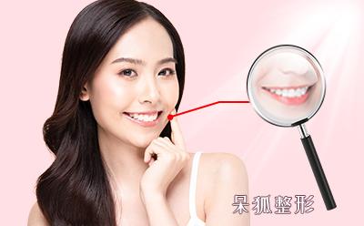 牙齿美容贴片多少钱?