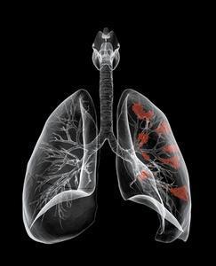 从事哪种职业易患肺癌?