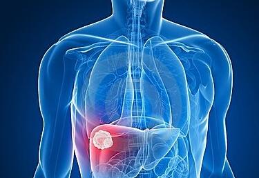 东南沿海多肝癌原因是什么