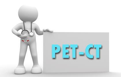 PETCT检查需要空腹吗?
